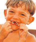 La caida de los dientes